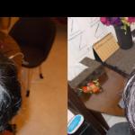 頭頂部のBefore-After
