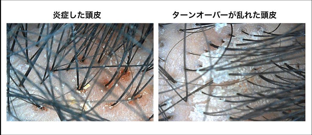 頭皮環境の悪化による炎症